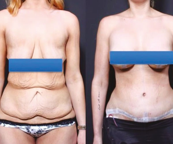 My story went viral and a US surgeon offered to remove my excess flesh for free. ***Pictures exclusive to Take 5***