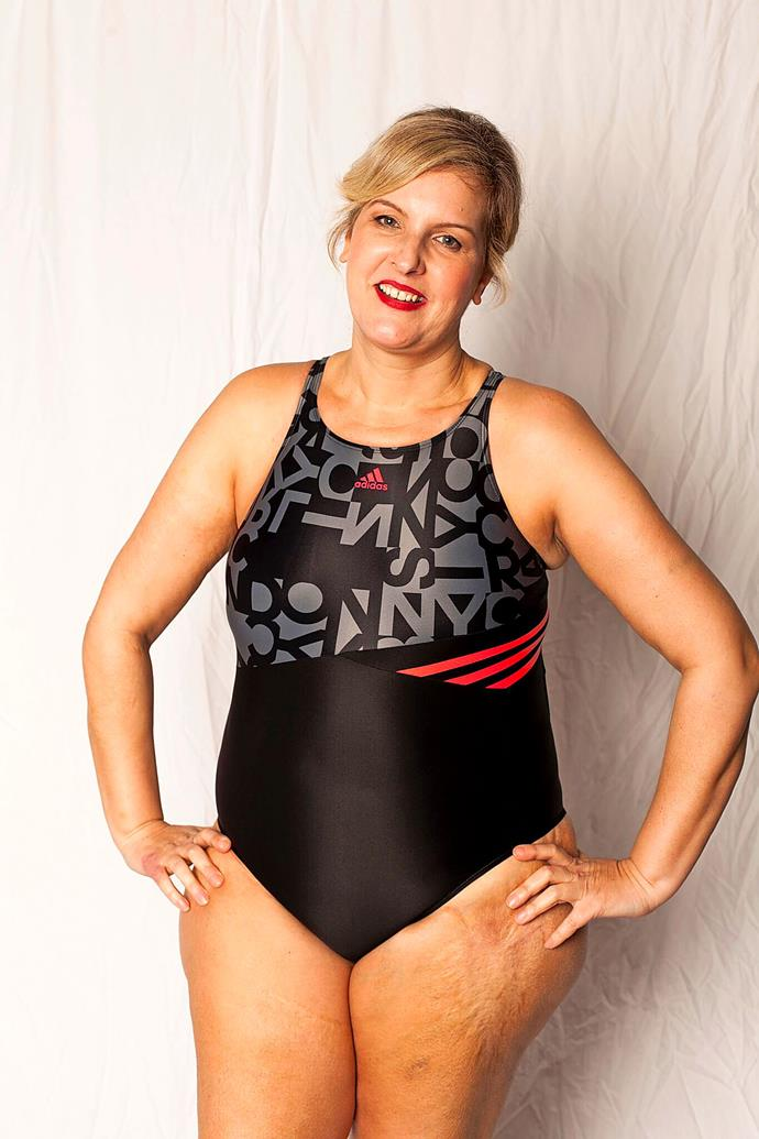 """""""I'd loved swimming, but now I hated people looking at my body.""""  ***Pictures exclusive to Take 5.***"""