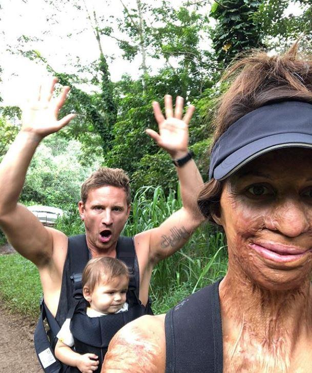 "Turia Pitt's husband Michael Hoskins celebrated his first Father's Day this year and she posted, ""Hakavai looks remarkably unperturbed as usual, but deep down, he knows he's a lucky kid to have this legend as his Dad!'"