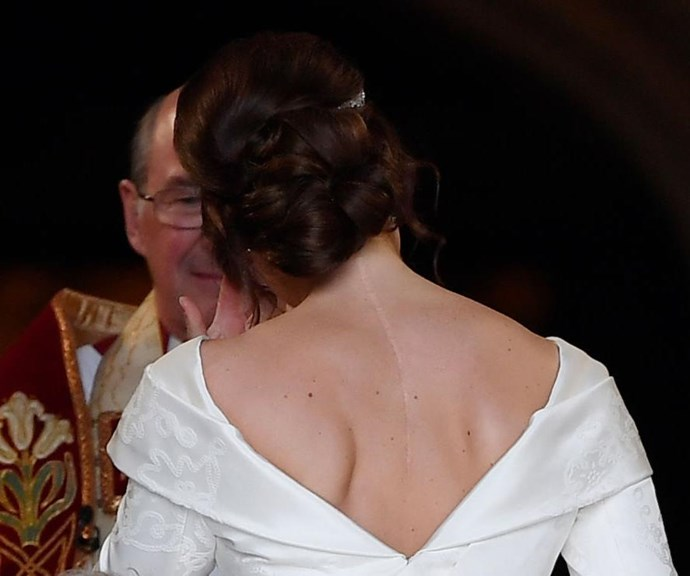 Princess Eugenie's scoliosis scar was proudly on display during her nuptials to Jack Brooksbank. *(Image: Getty)*