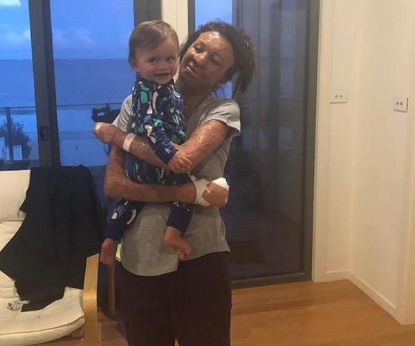 After Turia came back from surgery, she had one happy little face to return home to. *(Image: Instagram @turiapitt)*