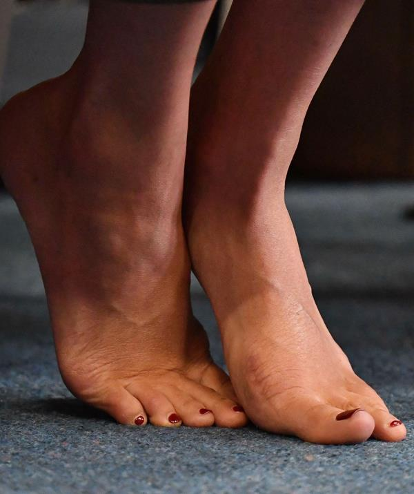 A bunion to the right and a surgery scar to the left – Meghan's feet have been in the wars. *(Image: Getty Images)*