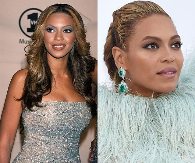 "There's no denying Queen Bey, pictured in 2000 on the left and 2016 on the right, has changed up her look over the years with many fans pointing out how different her nose has become. According to our expert, the singer has had a ""nose job with gentle refinements."""