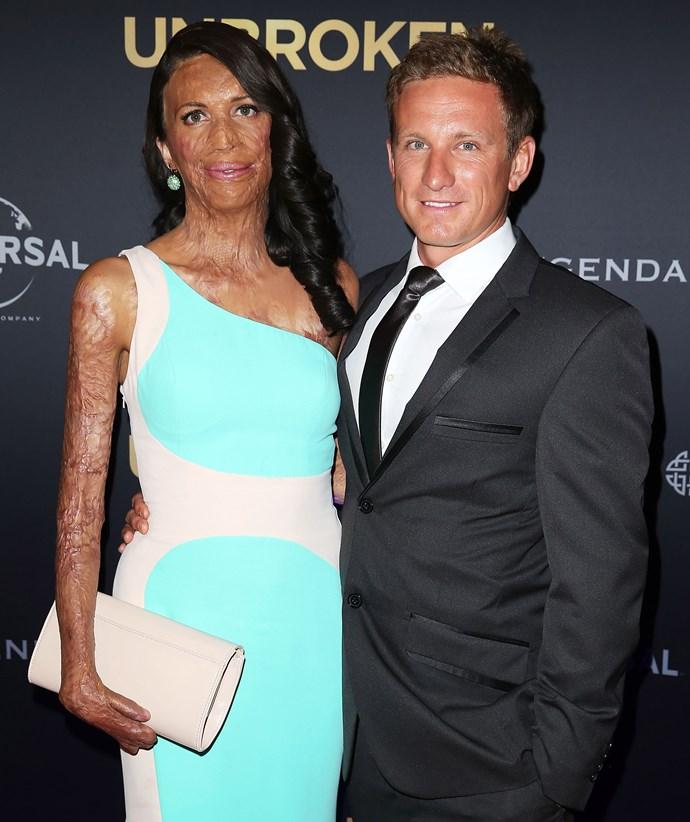 Turia Pitt and her partner Michael Hoskin. *(Image: Getty)*