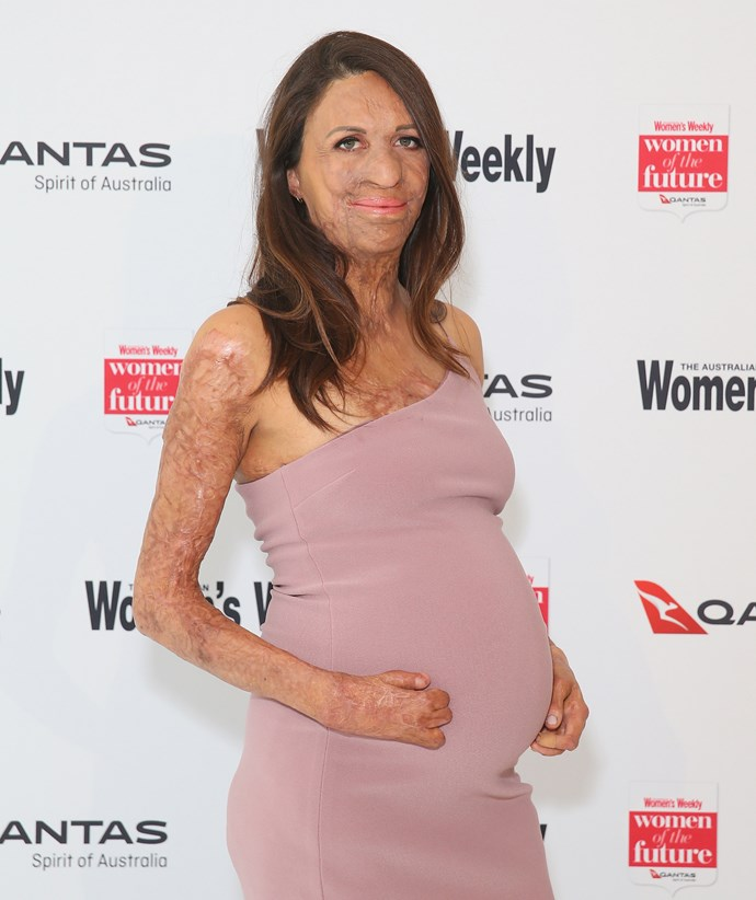 Turia Pitt at The Weekly's Women Of The Future Awards. *(Image: Getty)*