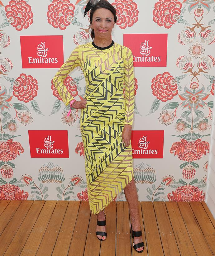Turia Pitt at Oaks day in 2019. *(Image: Getty)*