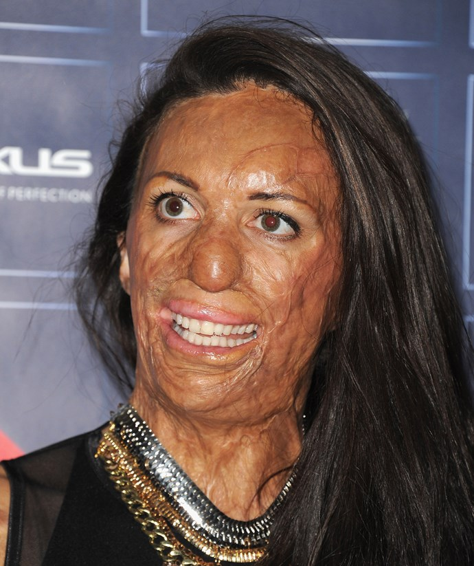 Looking after her skin is now crucial for Turia. *(Image: Getty)*