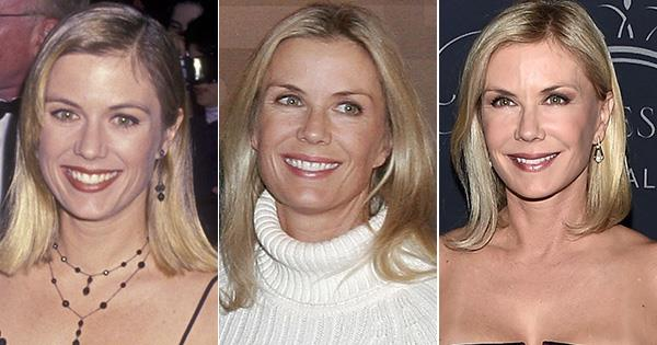The Bold And The Beautiful S Katherine Kelly Lang S Plastic Surgery Transformation Ok Magazine