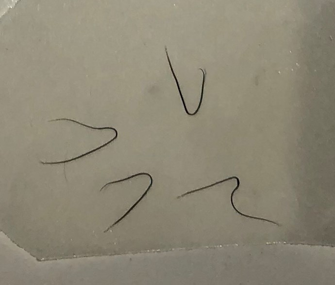 What Stephanie's lashes looked like when they fell out after treatment, which happened at a beauty salon in Sydney's south.  *(Image: Supplied)*