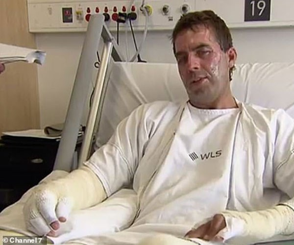 """He used his burns as a lesson. Photo credit: [Channel 7](https://au.news.yahoo.com/lost-limb-man-left-severe-burns-bucks-party-prank-043613364.html