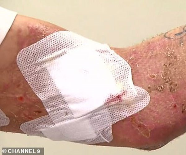 """Brent's awful injuries.  Photo credit: [Channel 9](https://twitter.com/9NewsMelb/status/1070942991617945600