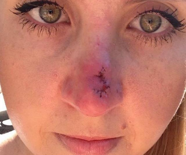 Lauren has urged her followers to get their skin checked. *(Image: Instagram @laurenhuntriss)*