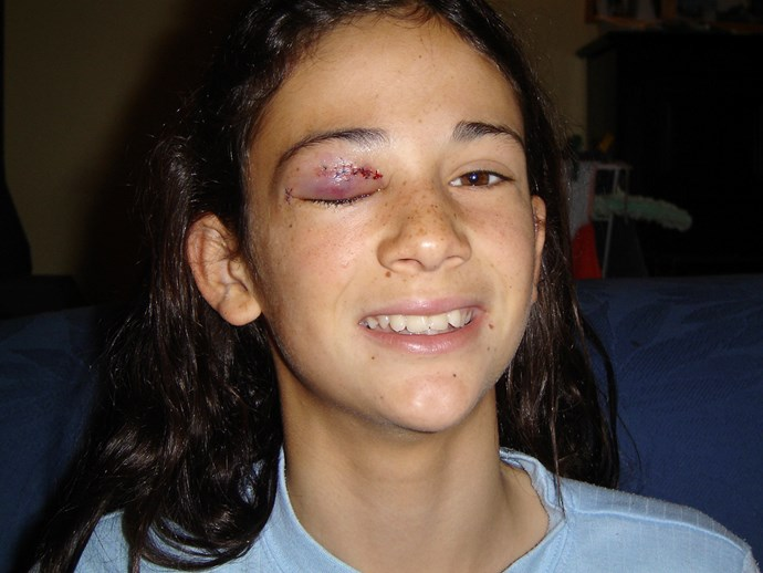 Mikaela had to have 12 stitches after sustaining a gruesome injury (Image: Supplied).