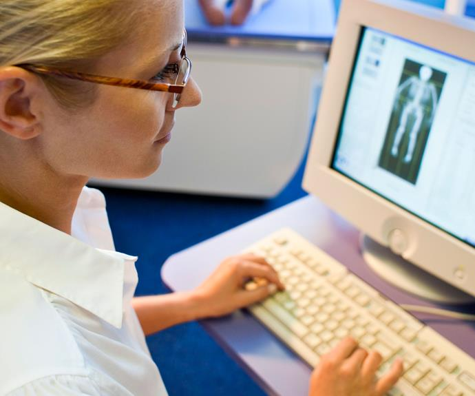 Osteoporosis occurs when your bones lose minerals more quickly than the body can replace them.