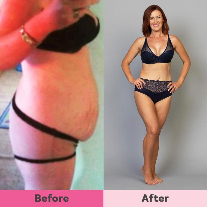 Lauren has the added challenge of having an underactive thyroid but has lost an impressive 18kg.