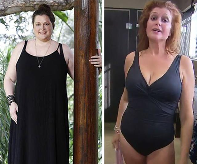 "Tziporah Malkah confessed to undergoing lap-band surgery, but it didn't work for her. But after losing 12kg on *I'm A Celebrity Get Me Out Of Here*, the motivated Aussie [made a number of lifestyle changes](https://www.nowtolove.com.au/lifestyle/daily-life/tziporah-malkah-weight-loss-55718|target=""_blank"") and started working with a personal trainer, shedding an impressive 50kg."