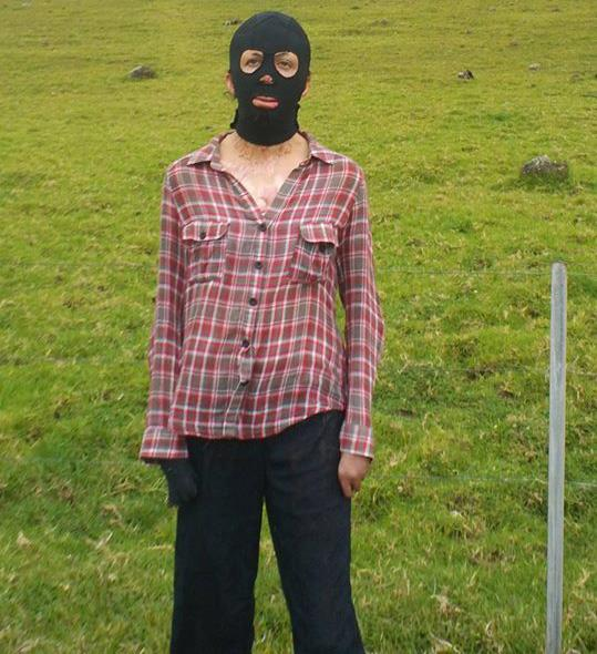 The compression mask Turia wore to protect her skin.