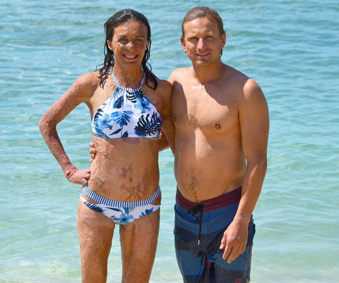 Turia and Michael have been together for almost 10 years.
