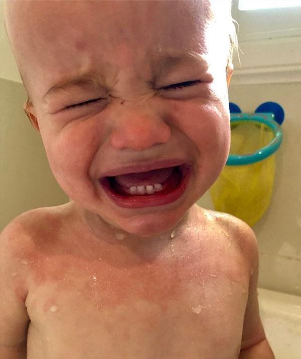 Cooper's eczema was painful and itchy but he found relief in baths of filtered water.