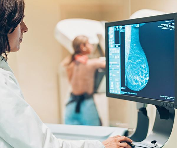 The Cancer Council of Australia provides free screening mammograms every two years to all Australian women aged 40 and over.