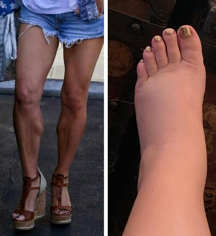 "Jessica posted this hilarious ""10-year challenge"" before and after photo on Instagram of her ankles pre and post pregnancy."