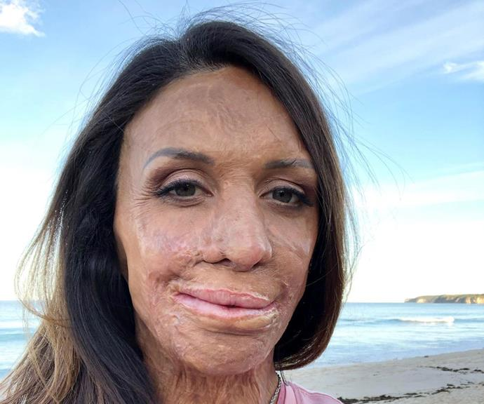 Turia Pitt was 26 when she was caught in a grassfire and nearly died.
