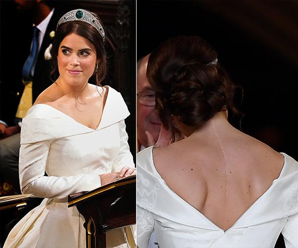 Princess Eugenie's wedding dress showed off her scoliosis scar on her back but had a modest V-neck.