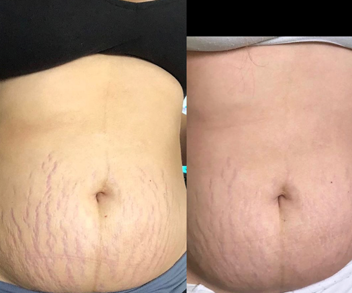 Sammy's stretch marks before (left) and after (right) using Bangn Body.
