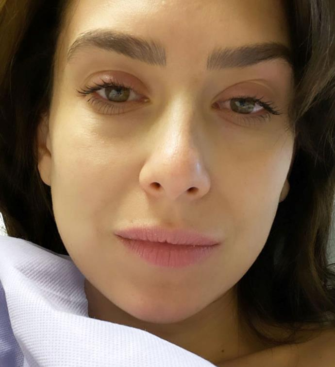 Hilaria shared this heartbreaking selfie on Instagram following her medical procedure.