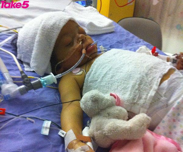 Sondra's daughter Alex at 18 months old in the ICU.