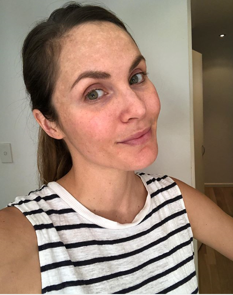 Gorgeous Laura Byrne shares an image of the melasma that she developed when pregnant with Marlie-Mae to let people know that it's normal and it's totally fine.