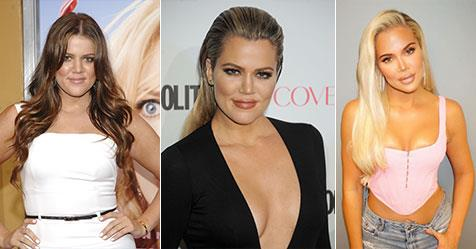 Khloe Kardashian's plastic surgery transformation | NW