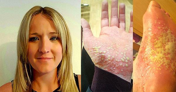 Psoriasis made my skin fall off | Take 5