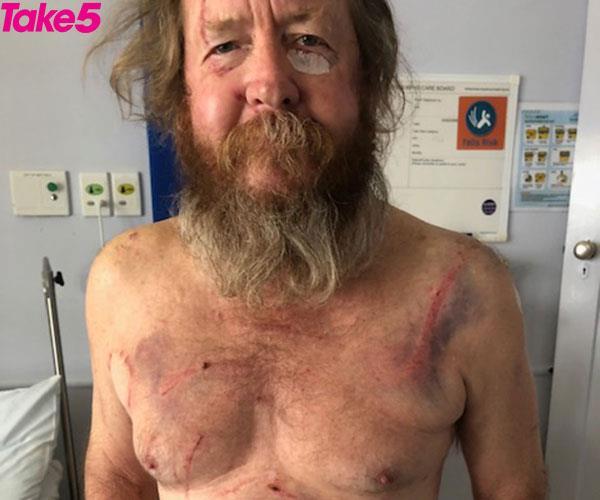 Jim's kangaroo-inflicted injuries.
