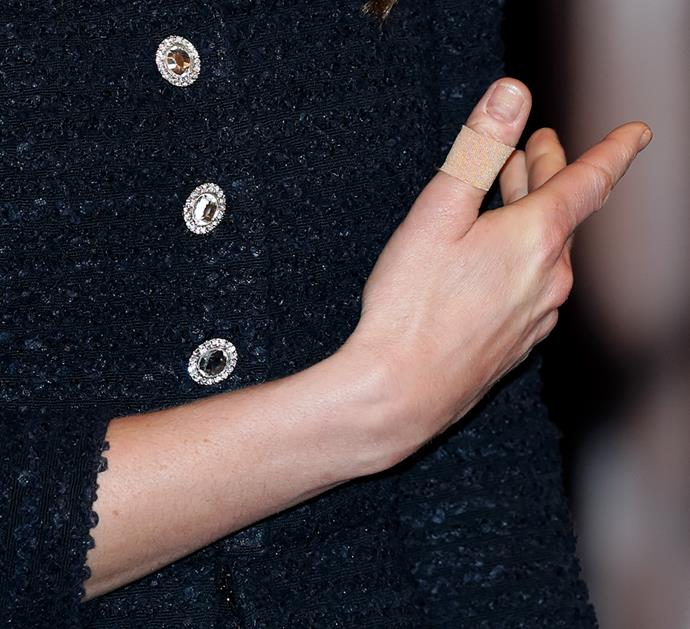 Kate's beautiful dress featured these striking buttons.