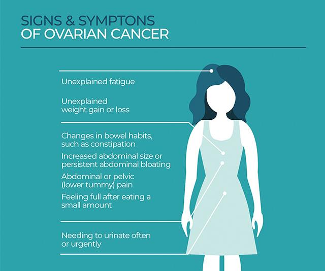 These are some of the signs that you could have ovarian cancer.
