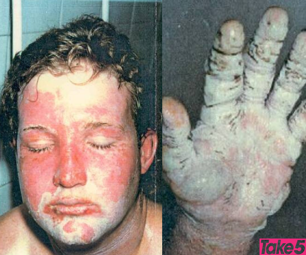 The burns were so painful and the skin on my hands turned black.