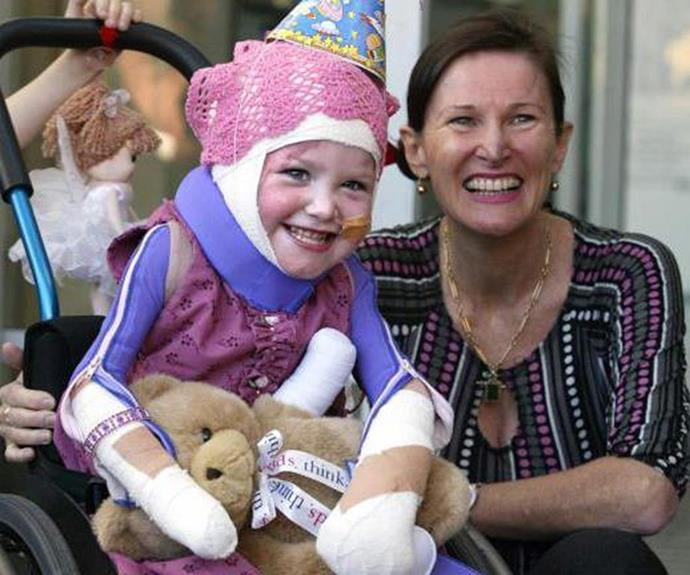 The adorable toddler suffered horrific injuries, including burns to 85 per cent of her body, the loss of both feet, one hand and one ear.