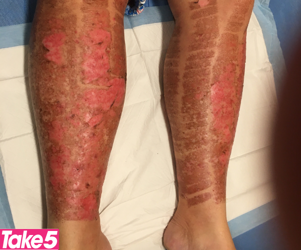 My legs in hospital after the IPL treatment. This was when they were redressing my legs.   *(Image: Supplied)*