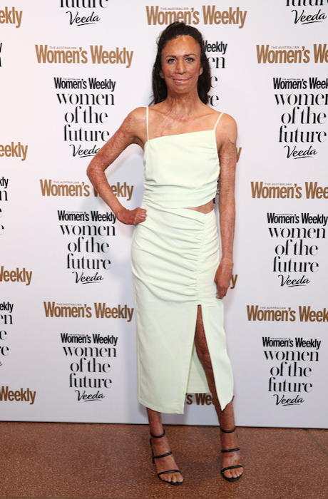 The ever inspiring Turia Pitt was glowing in a beautiful bright dress.