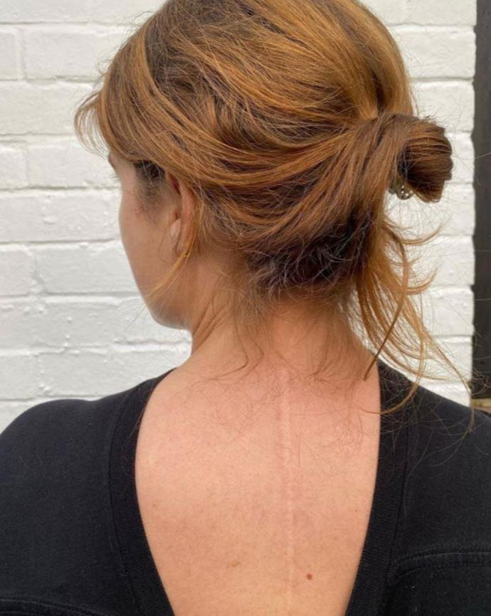 Eugenie showed off her scoliosis scar, inviting her followers to do the same.
