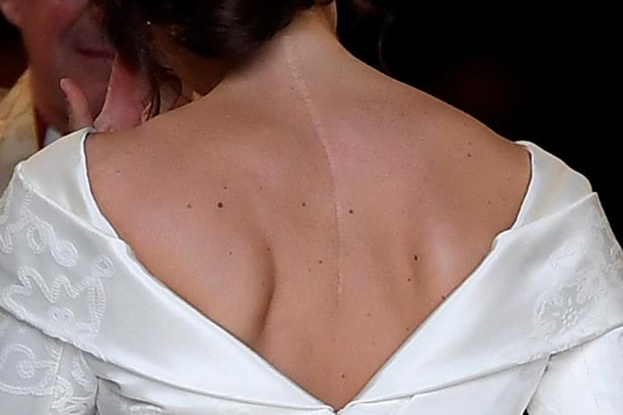Princess Eugenie's 2018 wedding dress was designed specifically to show her scar.
