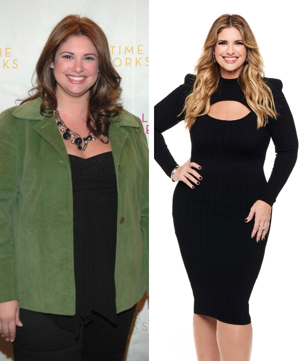 Alessandra lost 60kgs through a gastric bypass surgery in 2008.