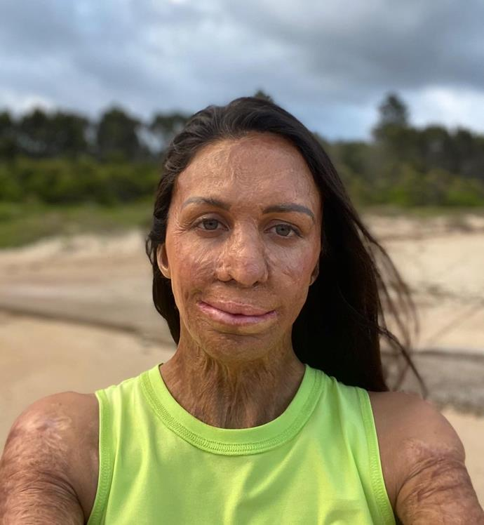Turia Pitt knows a thing or two about regaining confidence.
