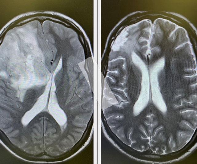 Johnny shared these two pictures of his brain two years apart. In the left image, you can see the tumour.