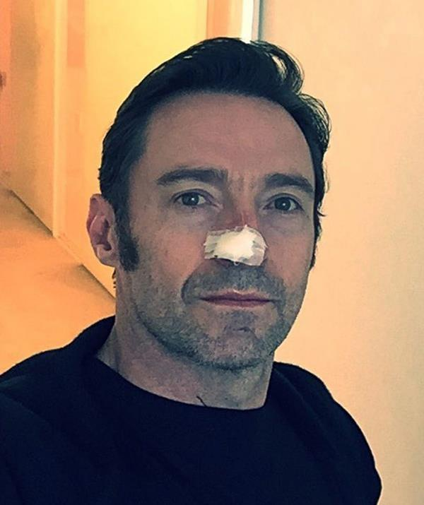 Hugh has had cancers removed before.