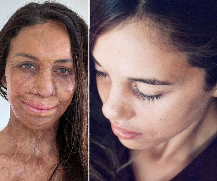 This year, Turia shared these pictures from before and after her accident on her Instagram.