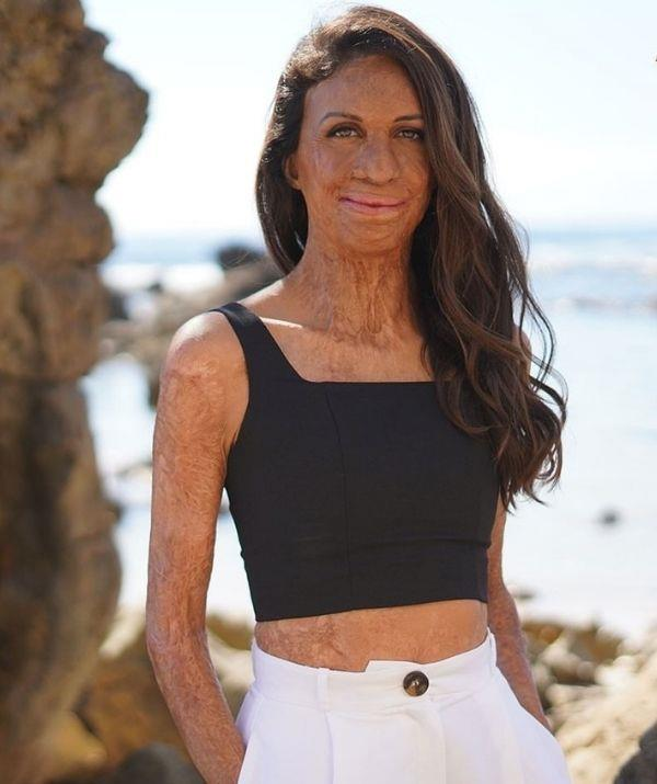 **Turia Pitt** <br><br> She's an author, motivational speaker, survivor, mother, athlete, and Australia's most inspirational woman. <br><br> And lucky for us, Nine has confirmed Turia will appear on the show, and we already know she will go far.