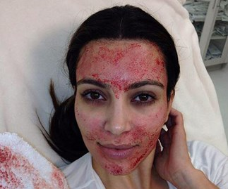 Watch what it's like to get a vampire facial