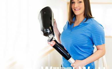 The prosthetic expert changing people's lives